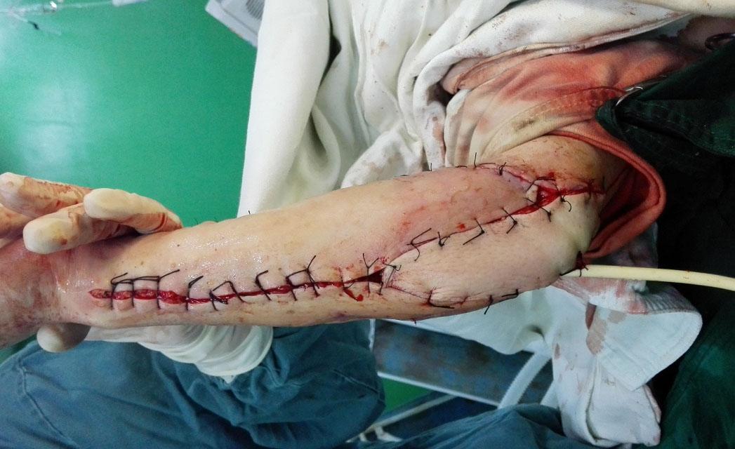 腓骨复合组织游离皮瓣修复手臂