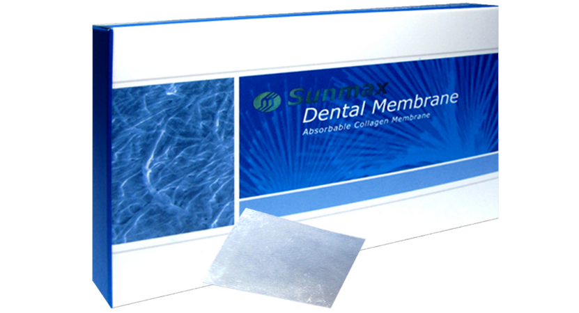 胶原蛋白牙科膜